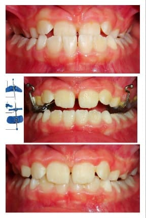 Before and After | Mount Albert Orthodontic Specialists